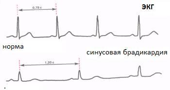 Сравнение нормального ритма и брадикардии на ЭКГ