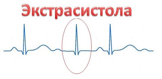Экстрасистолия сердца это несвоевременное сокращение всего сердца или его отдельных частей