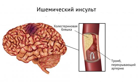Ишемический инсульт - это нарушения мозгового кровообращения в связи с закупоркой сосуда головного мозга тромбом.