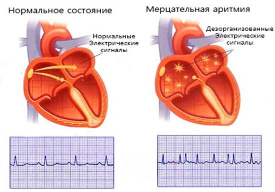 Сравнение нормального состояние и мерцательной аритмии