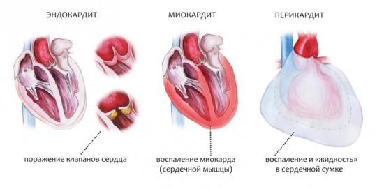 миокардит сердца - воспаление миокарда