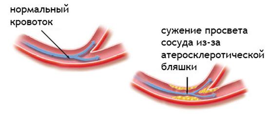 Процесс образования атеросклеротических бляшек