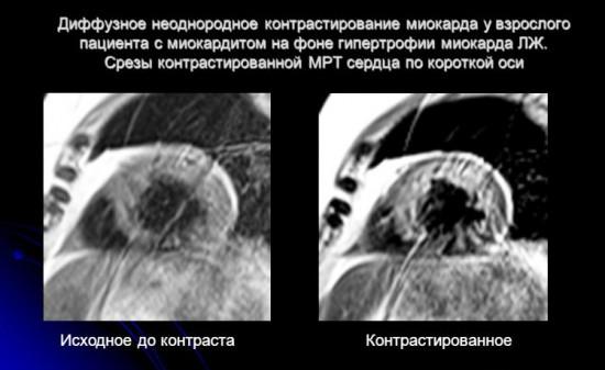 использование контрастного вещества при МРТ сердца
