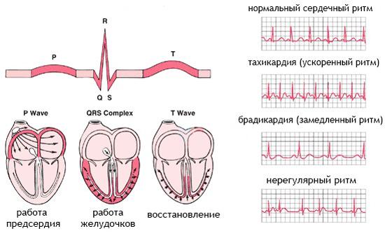 Виды сердечных аритмий