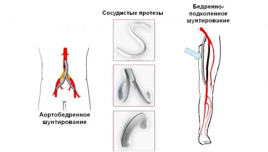 Шунтирование - сосудов нижних конечностей при атеросклерозе