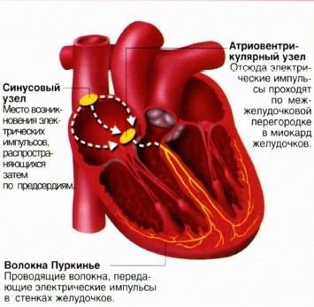 Возникновение синусовой аритмии в сердце