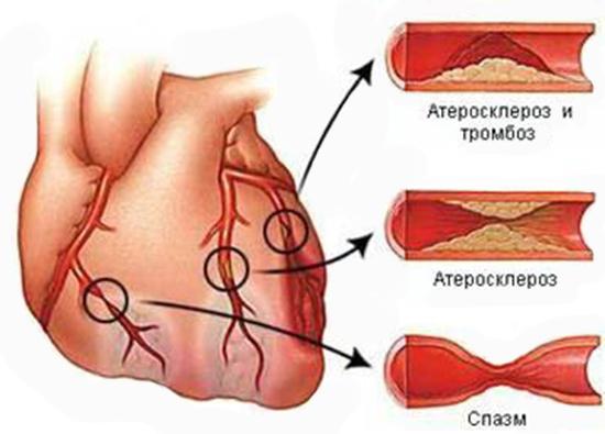 Наглядное изменение сосудов при атеросклерозе и тромбозе