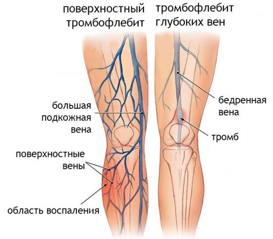 Визуальное различие тромбофлебита глубоких вен и поверхностных вен